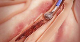 vücut kan hacmi nasıl hesaplanır
