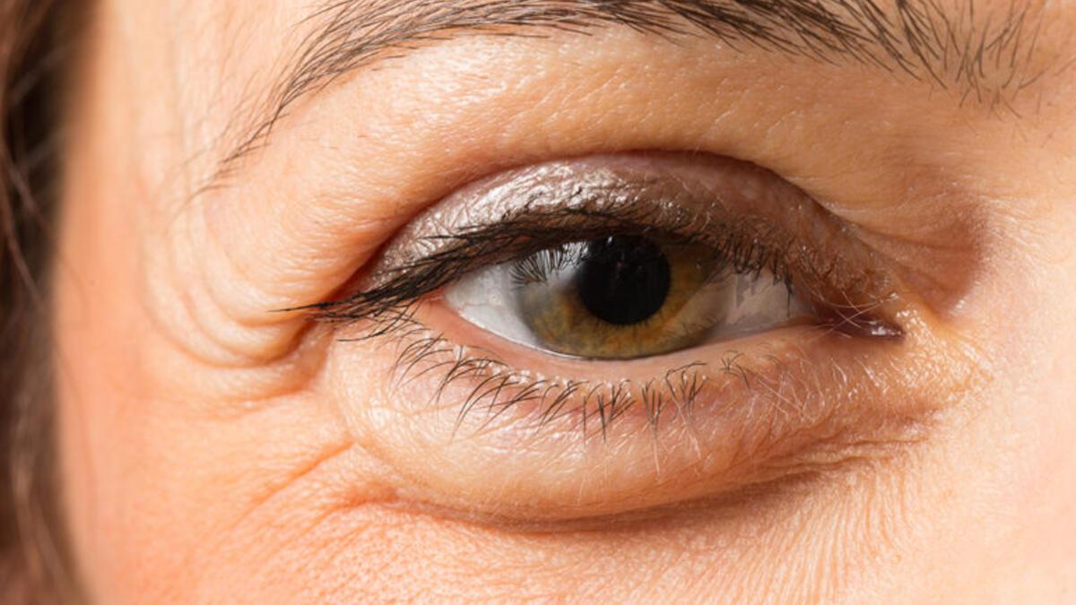 katarakt nasıl tedavi edilir