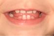 bebeklerin dişleri ne zaman çıkar