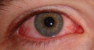 çocuk göz kanlanması